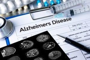 A diagnosis of Alzheimer's makes Alzheimer's & Dementia Planning essential.